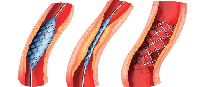 Atherosclerosis and HGH