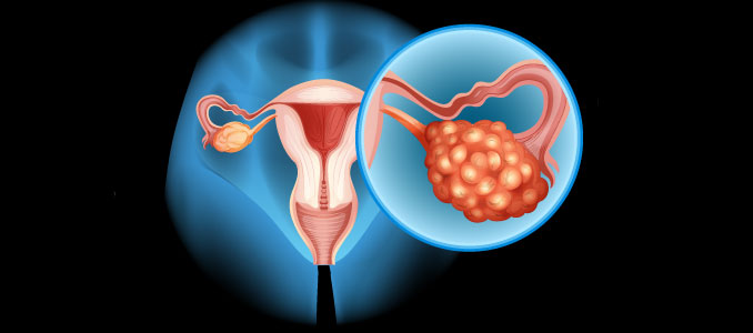Hormone Therapy For Ovarian Cancer 2018 Study
