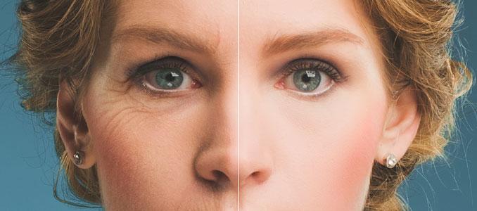 Humatrope and Anti-Aging
