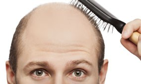 Baldness and Testosterone