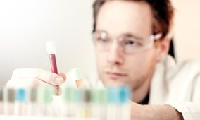 Testosterone Blood Test